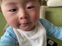 離乳食で卵アレルギーが発症したときの我が子の症状
